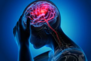 Man with brain stroke symptoms