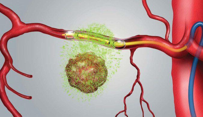 Chemo through catheter