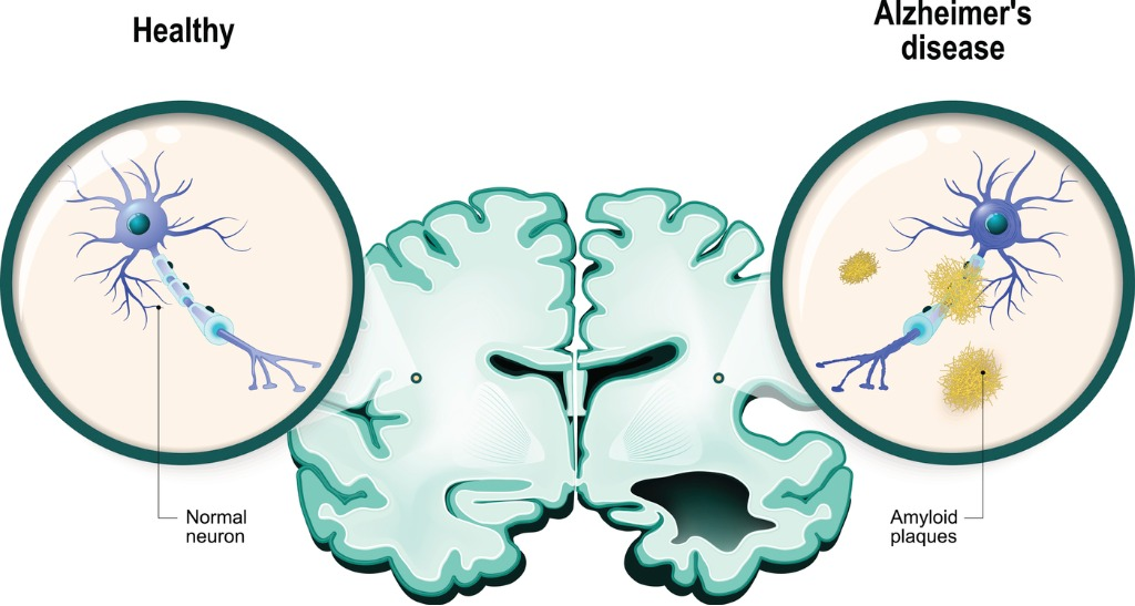 Graphical image of AZ disease and neurons in the brain