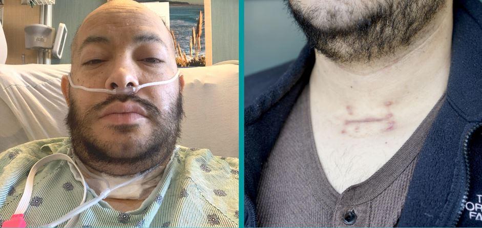 Jose Jimenez before and after COVID-19 hospitalization